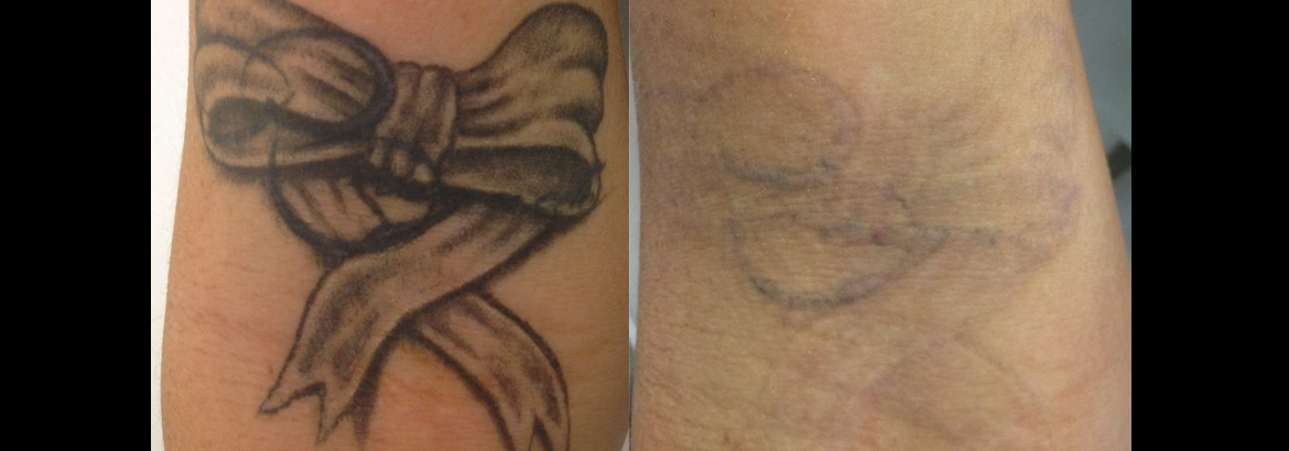 Laser Tattoo Removal Brisbane North Tattoo Removal Brisbane