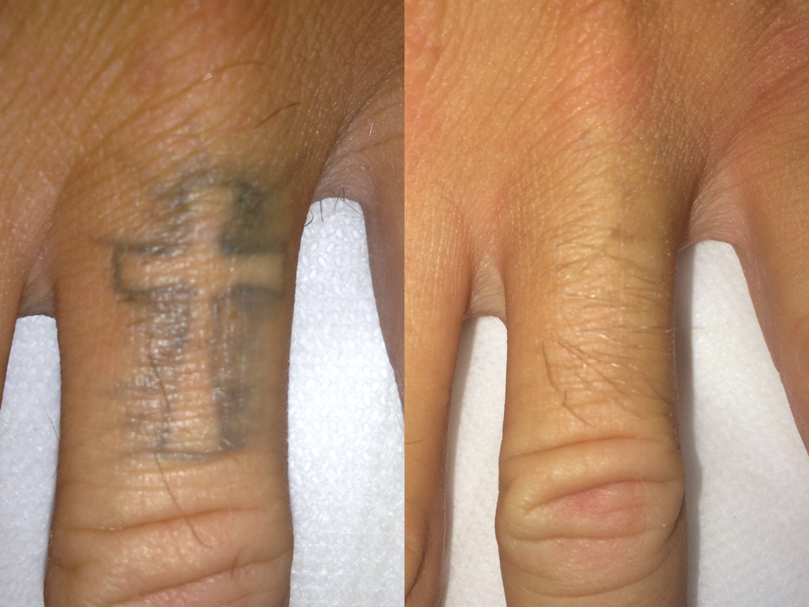 Laser Tattoo Removal Brisbane North